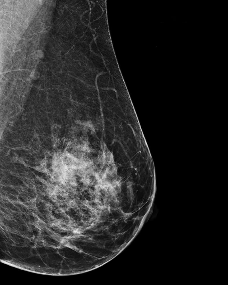 Mammogram - Spies Radiology Services