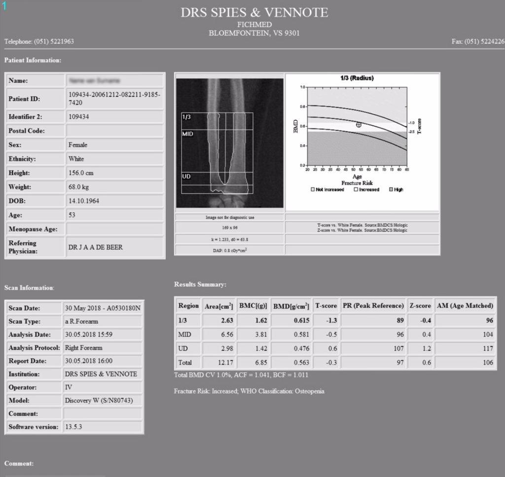 Bone Density Test - Spies Radiology Services